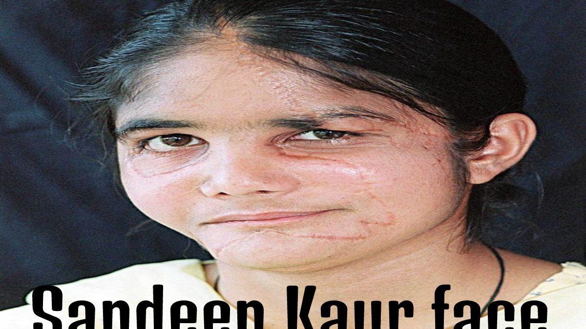 Sandeep Kaur face – Sandeep Kaur had her face ripped off from a thresher & More